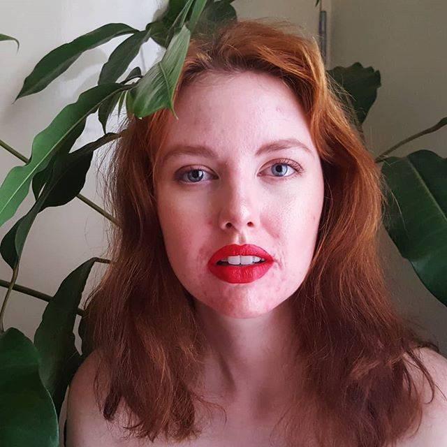 Chẳng nề hà đăng ảnh mặt mộc chi chít mụn và vết thâm, điều mà 12 cô nàng này muốn truyền tải khiến nhiều người nể phục - Ảnh 9.