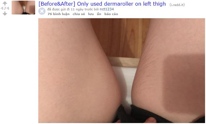 Nhờ loại dụng cụ đơn giản, mà những vết rạn da của cô gái này đã biến mất chỉ sau 2 tuần sử dụng - Ảnh 1.