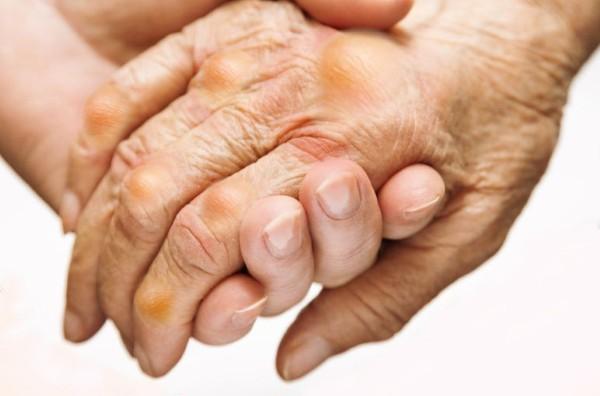 Hoại tử nửa người vì tự làm bác sĩ chữa gout - Ảnh 1.