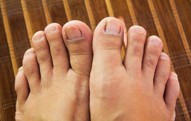 Những hiện tượng kinh khủng này có thể xuất hiện khiến sức khỏe bàn chân của bạn thêm tồi tệ - Ảnh 1.