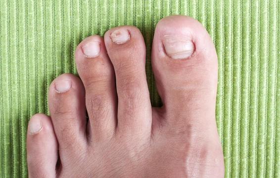 Những hiện tượng kinh khủng này có thể xuất hiện khiến sức khỏe bàn chân của bạn thêm tồi tệ - Ảnh 2.