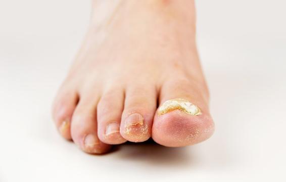 Những hiện tượng kinh khủng này có thể xuất hiện khiến sức khỏe bàn chân của bạn thêm tồi tệ - Ảnh 3.