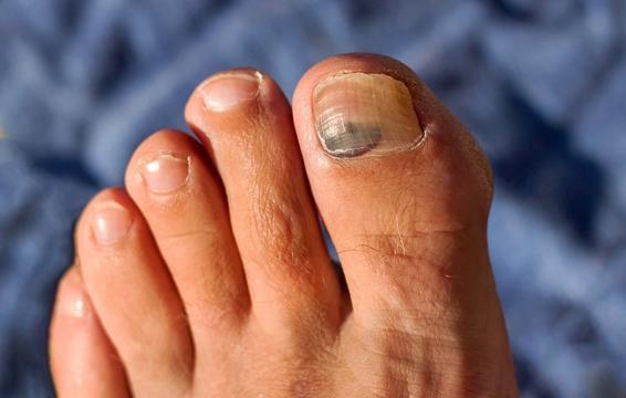 Những hiện tượng kinh khủng này có thể xuất hiện khiến sức khỏe bàn chân của bạn thêm tồi tệ - Ảnh 4.