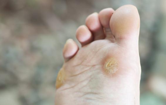 Những hiện tượng kinh khủng này có thể xuất hiện khiến sức khỏe bàn chân của bạn thêm tồi tệ - Ảnh 5.