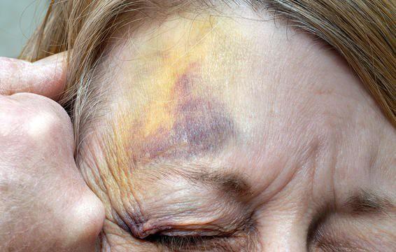 6 dấu hiệu cảnh báo cơn đau nhức đầu bạn đang gặp là không bình thường và cần đi khám ngay - Ảnh 7.