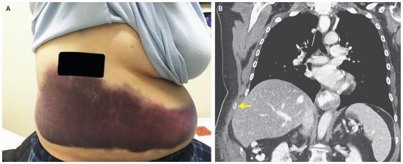 Ho quá mạnh dẫn đến gãy một cái xương sườn, bác sĩ phát hiện ra người phụ nữ này mắc căn bệnh rất đỗi quen thuộc mà không biết - Ảnh 1.