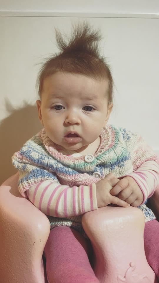 Bé gái 5 tháng tuổi đột nhiên ngừng thở vì căn bệnh rất phổ biến ở trẻ vào mùa đông - Ảnh 2.