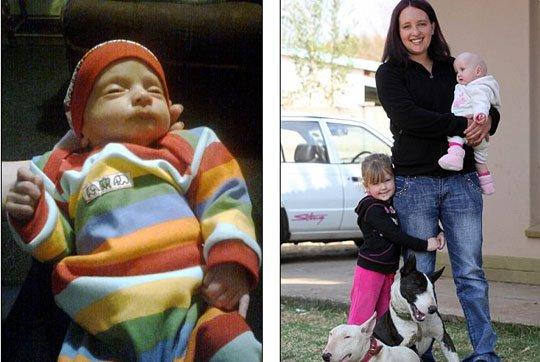 Bé sơ sinh sau 5 tháng chào đời mới phát hiện ra giới tính thật vì 1 nguyên nhân cực hiếm - Ảnh 2.