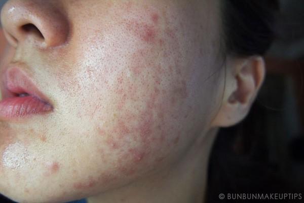 Đắp mặt nạ bằng thuốc Đông y: Đừng lấy da mặt làm thí nghiệm - Ảnh 2.