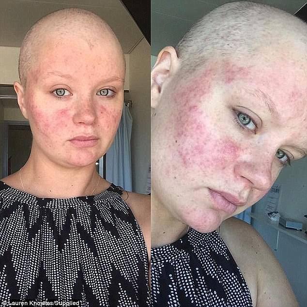 Đau quặn cả bụng, người mẹ lập tức vào nhà vệ sinh không ngờ rặn ra cả khối u ung thư - Ảnh 3.