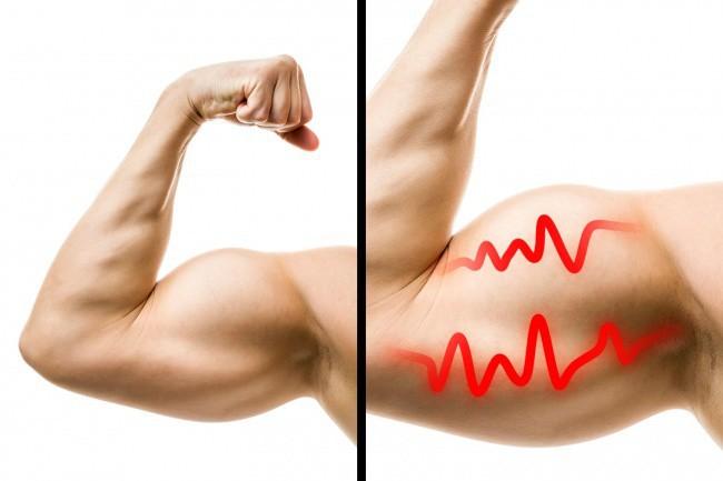 Tập gym tốt thật, nhưng có đến 9 tác dụng phụ mà ai cũng có thể gặp phải - Ảnh 1.