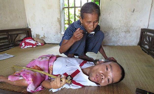 Người cha tật nguyền ngày ngày bán tăm dạo kiếm tiền chữa bệnh cho con trai mắc bệnh hiểm nghèo, bụng căng phồng chực nổ tung - Ảnh 6.