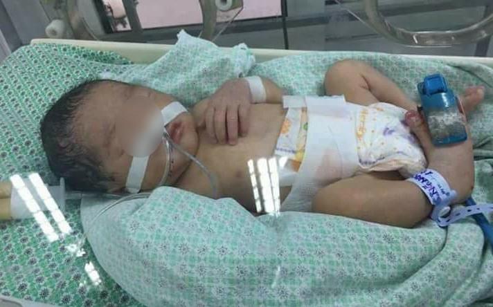 Bé gái 32 tuần tuổi bị mẹ phá thai để chối bỏ, được nhóm thiện nguyện khi đi nhặt xác thai nhi cứu sống