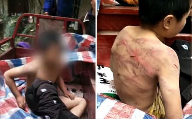 Bị bố mẹ đánh đập dã man, cậu bé mình chi chít vết roi, cởi trần vạ vật giữa trời âm độ - Ảnh 1.