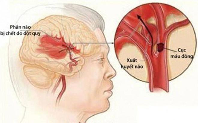 Đột quỵ não: Cần xử trí sớm và đúng cách - Ảnh 1.
