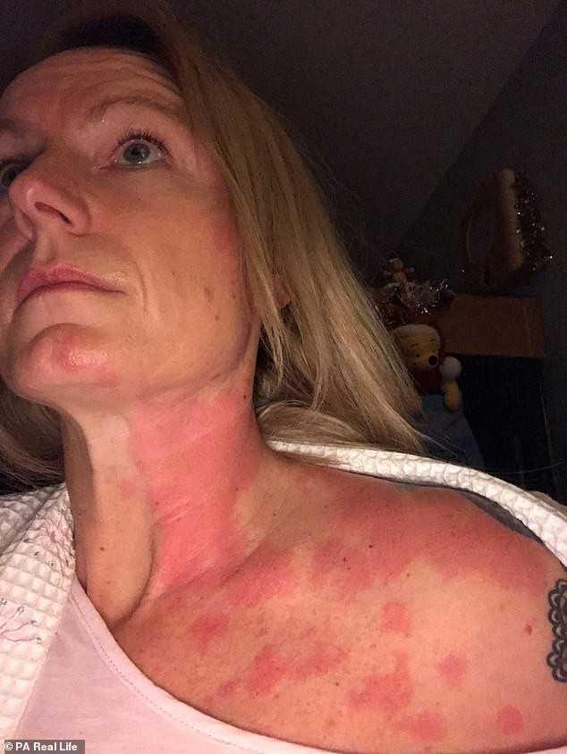 Người phụ nữ 42 tuổi bị dị ứng khiến ai nhìn cũng khiếp sợ chỉ vì có thói quen này vào buổi đêm - Ảnh 4.