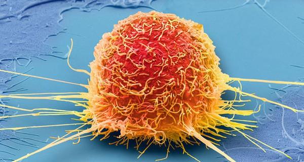 Cẩn thận 10 triệu chứng là điềm báo tiền ung thư mà nhiều người còn mơ hồ và không nhận ra - Ảnh 3.