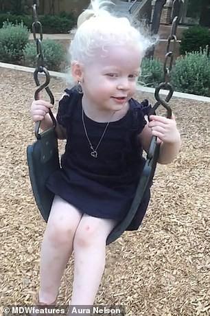 Bé gái có mái tóc bạch kim xinh như công chúa Disney, ai ngờ đó là dấu hiệu của căn bệnh nguy hiểm chết người - Ảnh 3.
