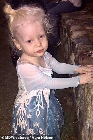 Bé gái có mái tóc bạch kim xinh như công chúa Disney, ai ngờ đó là dấu hiệu của căn bệnh nguy hiểm chết người - Ảnh 2.