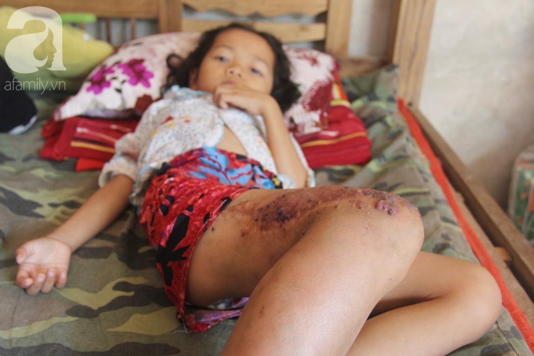 Em quỳ gối xin mọi người cứu lấy con em, không có tiền phẫu thuật bướu máu con bé sẽ chết