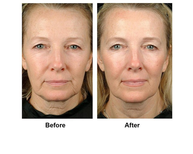 Trẻ hóa da, nâng cơ với công nghệ HIFU, Ultherapy và Thermage FLX của Vian Beauty - Ảnh 1.