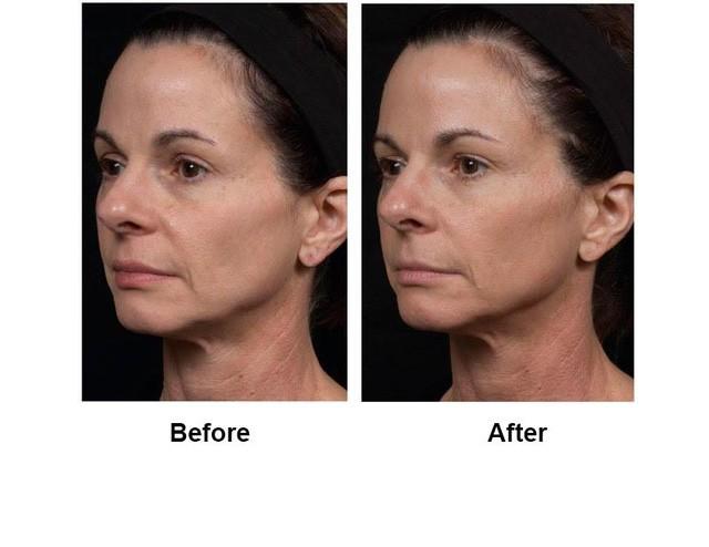 Trẻ hóa da, nâng cơ với công nghệ HIFU, Ultherapy và Thermage FLX của Vian Beauty - Ảnh 3.