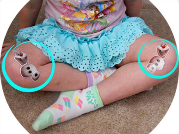 Hậu quả khôn lường từ tư thế ngồi vô cùng phổ biến ở trẻ nhỏ - Ảnh 3.