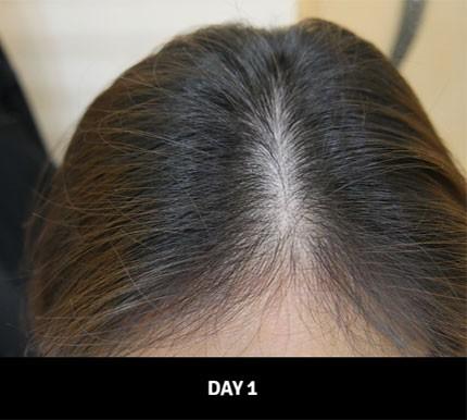 """Cứ 1 giây lại bán được 1 sản phẩm, dầu gội này chính là """"cứu tinh"""" giải quyết tình trạng tóc rụng của phụ nữ Nhật - Ảnh 5."""
