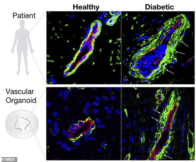 Nuôi thành công mạch máu người trong phòng thí nghiệm - bước đột phá đem lại hi vọng cho cả người tiểu đường - Ảnh 2.