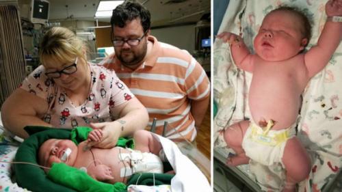 """Bác sĩ 30 năm tay nghề """"sốc nặng"""" khi đỡ đẻ cho một trẻ sơ sinh khổng lồ nặng gần 7kg - Ảnh 1."""