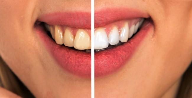 7 cách đơn giản ngăn ngừa sâu răng mà không phải ai cũng biết - Ảnh 5.