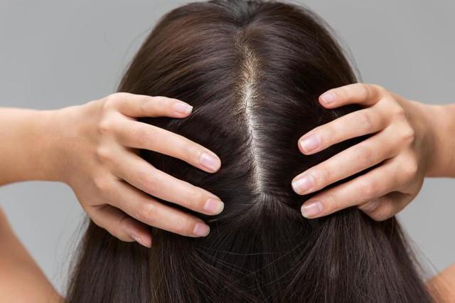 Da đầu – vùng da nhạy cảm bậc nhất nhưng thường bị lãng quên - Ảnh 1.