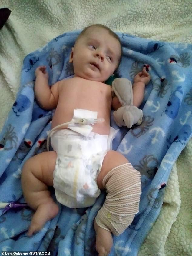 Đi siêu âm thấy xương con bị gãy, cha mẹ không ngờ đến điều khủng khiếp này xảy đến khi con chào đời - Ảnh 1.