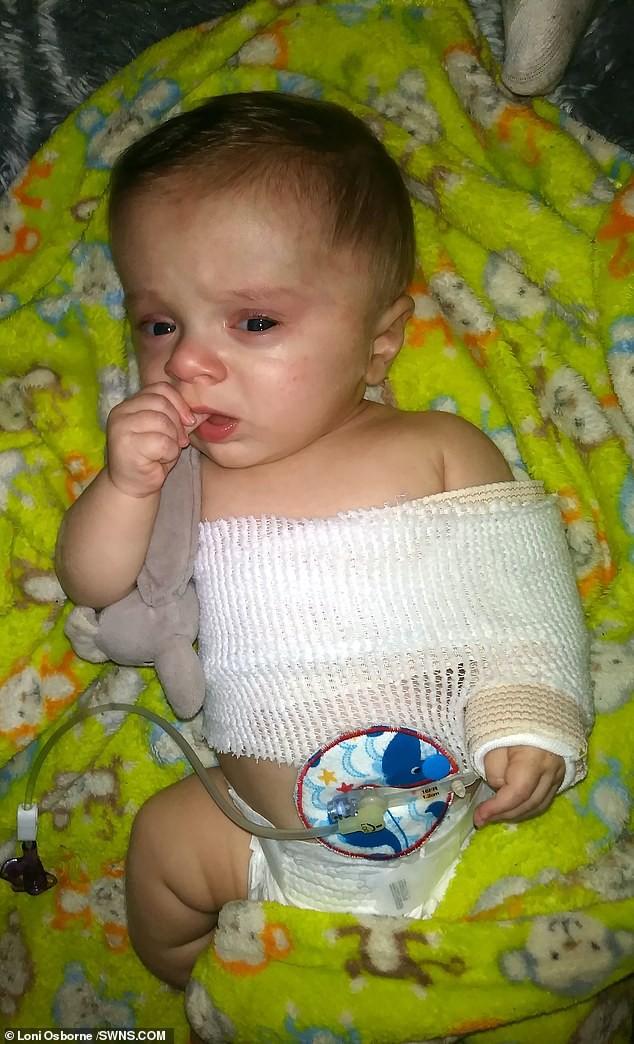 Đi siêu âm thấy xương con bị gãy, cha mẹ không ngờ đến điều khủng khiếp này xảy đến khi con chào đời - Ảnh 5.