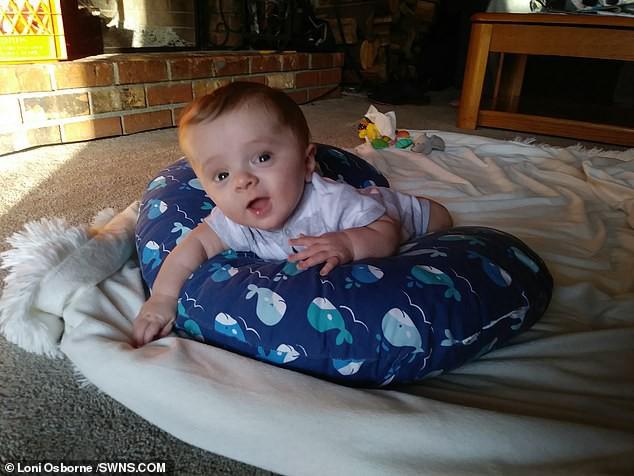 Đi siêu âm thấy xương con bị gãy, cha mẹ không ngờ đến điều khủng khiếp này xảy đến khi con chào đời - Ảnh 7.