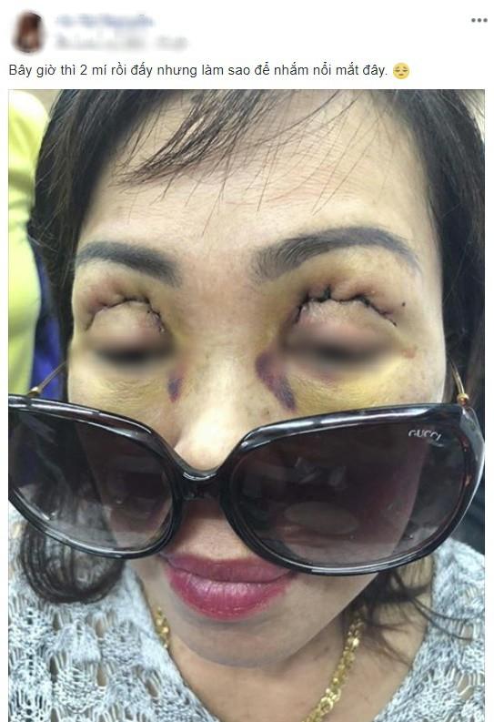 Vô vàn các biến chứng khi cắt mí mắt, nhấn mí thường gặp ở spa khiến chị em nhận trái đắng - Ảnh 4.