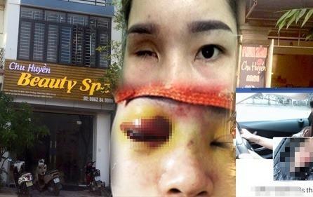 Tiệm spa nâng mũi khiến cô gái bị mù vĩnh viễn từng bị đình chỉ  - Ảnh 1.