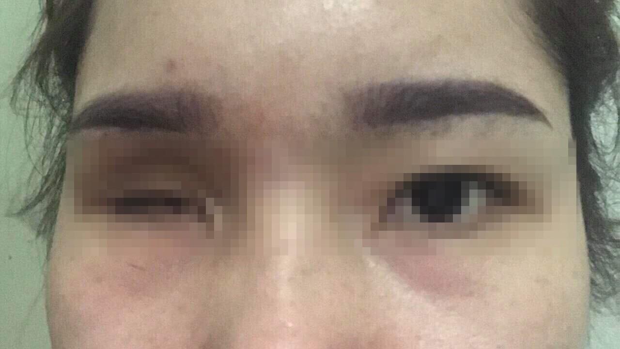 Vụ cô gái bị mù mắt phải sau khi tiêm filler nâng mũi: Cơ sở thẩm mỹ đã từng bị đình chỉ hoạt động trước đó - Ảnh minh hoạ 2