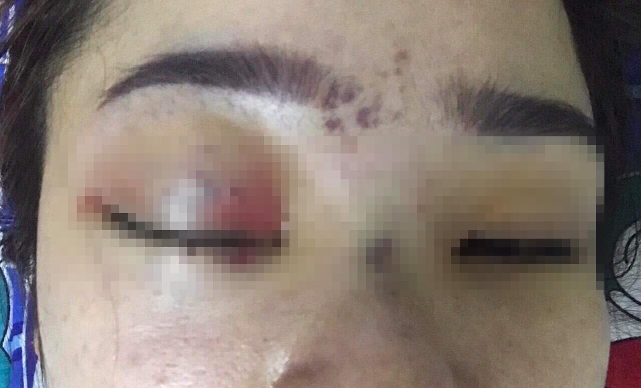 Vụ cô gái bị mù mắt phải sau khi tiêm filler nâng mũi: Cơ sở thẩm mỹ đã từng bị đình chỉ hoạt động trước đó
