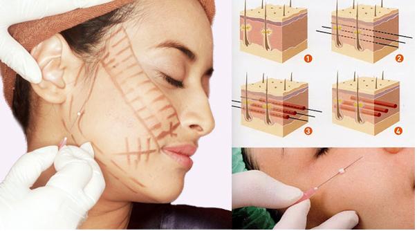 Trong các phương pháp căng da mặt, căng da mặt bằng chỉ dù nhẹ nhàng hơn cả cũng có rủi ro biến chứng đi kèm! - Ảnh 5.
