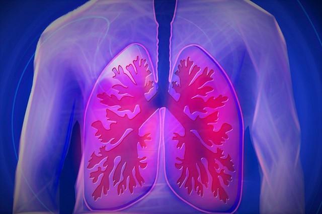 Người phụ nữ không hút thuốc, không uống rượu được chẩn đoán ung thư phổi do ô nhiễm môi trường - Ảnh 1.
