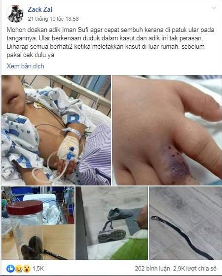 Bị rắn độc cắn khi lấy giày để mang, một cậu bé đã phải nhập viện gấp với bàn tay sưng húp, tím bầm - Ảnh 5.