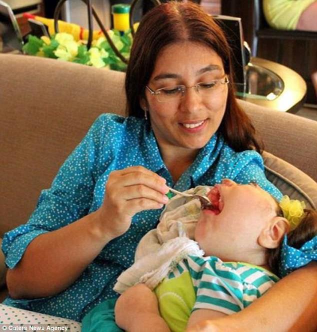 Thương cảm trước những em bé chào đời không được vẹn nguyên, em không có khuôn mặt hoặc khuôn mặt ị biến dạng - Ảnh 6.