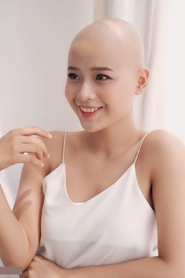 Phỏng vấn nhanh cô gái ung thư vẫn quyết thi Duyên dáng Ngoại thương - Ảnh 1.