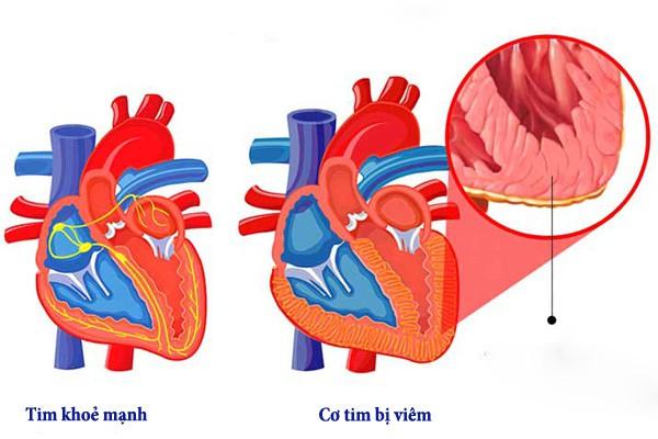 Chuyên gia chỉ ra nguyên nhân gây viêm cơ tim - căn bệnh nếu không điều trị kịp thời sẽ nguy hiểm đến tính mạng - Ảnh 2.