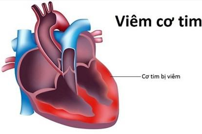 Chuyên gia chỉ ra nguyên nhân gây viêm cơ tim - căn bệnh nếu không điều trị kịp thời sẽ nguy hiểm đến tính mạng - Ảnh 3.