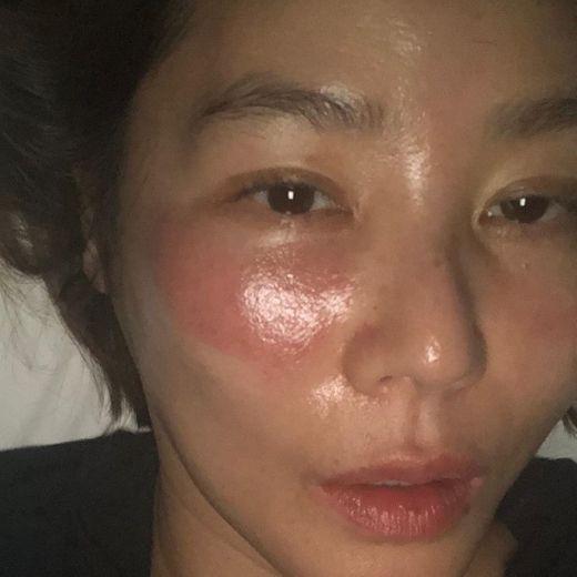 """Đắp mask quá lâu, """"Mẹ Kim Tan"""" nhận ngay cái kết đắng, làn da rát đỏ sưng tấy ai nhìn cũng sót - Ảnh 3."""