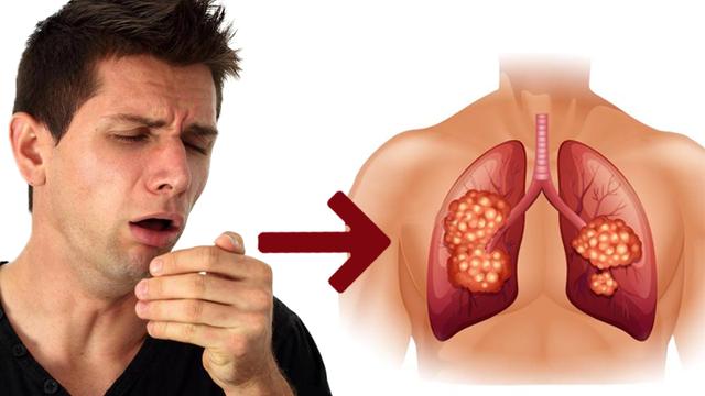 Chuyên gia chỉ rõ sai lầm nhiều người mắc phải khi dùng thuốc ho chữa bệnh trong ngày se lạnh - Ảnh 2.