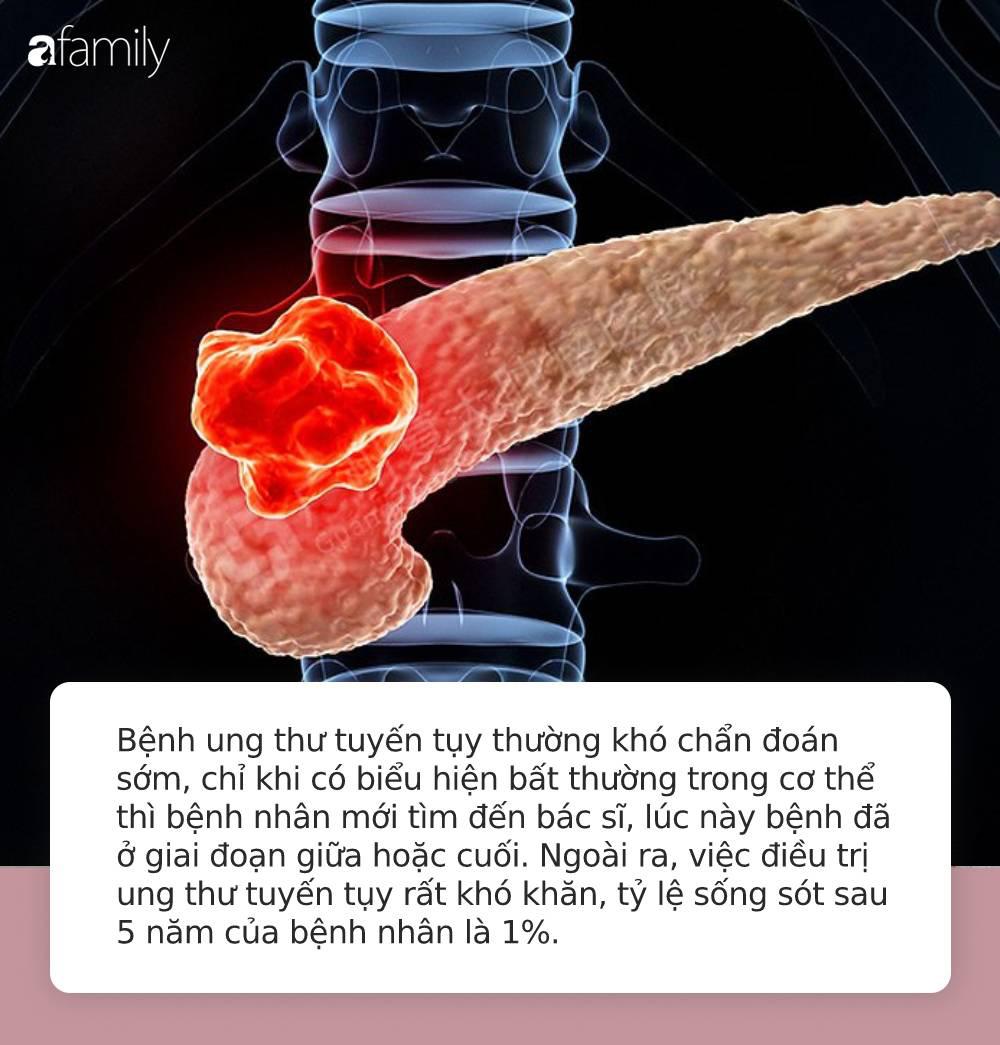 Từ chẩn đoán ung thư tuyến tụy đến tử vong chỉ trong vòng 1 năm: Hãy đi khám gấp nếu cơ thể có 4 điểm lạ này - Ảnh 1.