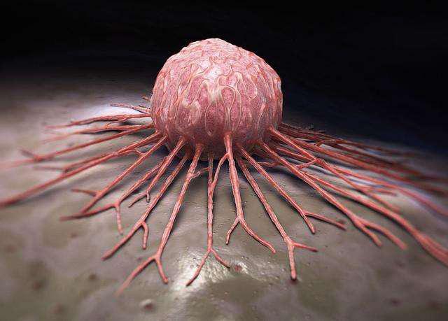 Dù đã được điều trị, tế bào ung thư vẫn có thể phát triển rầm rộ trở lại vì 3 lý do này  - Ảnh 3.